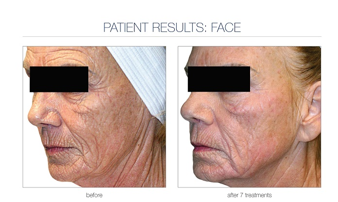 VFRPL_ClinicalCaseBook_DimaAli_Face&amp_Neck_7Tx